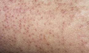 en skin naturally