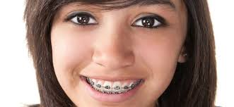 affordable orthodontic treatment cost
