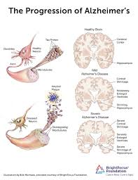 Stages Of Alzheimer S Disease Chart The Progression Of Alzheimers Disease Brightfocus Foundation