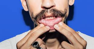 how to get rid of canker sores 20 home