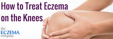 How to Treat Eczema on Knees - The Eczema Company