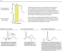 Ecg Interpretation Characteristics Of The Normal Ecg P