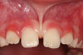 frenum release tongue tied