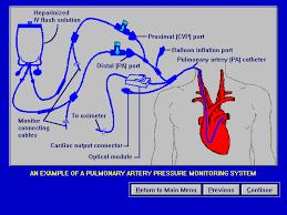 Hemodynamic Monitoring Hemodynamic Monitoring Part I Waveform