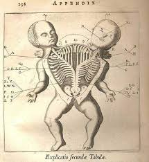 illustration creepy weird horror skeleton twins anatomy science    illustration creepy weird horror skeleton twins anatomy science goth medical page oddities medicine diagram appendix siamese