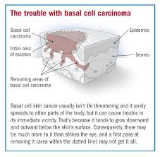 Basal cell carcinoma (bcc) is a type of skin cancer that begins in the basal cells. Basal Cell Carcinoma Overview Harvard Health