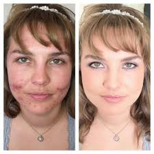 before and after makeup you can hide