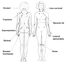 Fibromyalgia Tender Points Chart Natural Home Remedies And Holistic Cures Natural Remedies