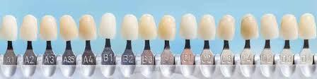 Veneer Teeth Color Chart Www Bedowntowndaytona Com