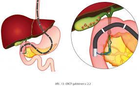 Galblaas klachten en symptomen; galblaasoperatie harderwijk
