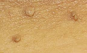How Do I Clear Up Skin Tags That Itch? – Skintagsgone.com