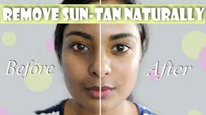 how to remove suntan hyperpigmentation naturally for even skin tone glowing plexion you