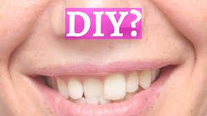The Danger of DIY Internet Orthodontics - Beware! | Dental Solutions