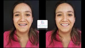 carillas dentales carillas dentales mito o realidad que son riesgo para los dientes