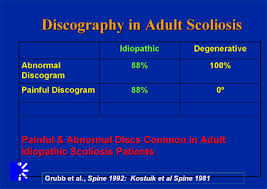 Scoliosis Chart Managing Scoliosis Stenosis With Low Lumbar Degeneration