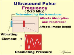 Ultrasound Intensity Chart Ultrasound Production And Interactions