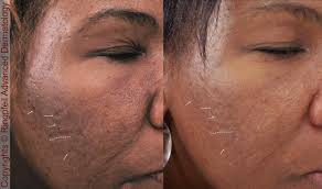 treating scars with infini and picosure acne scar and skin texture treatment