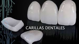 Carillas Dentales Carillas Dentales