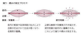 ゲート コントロール 理論