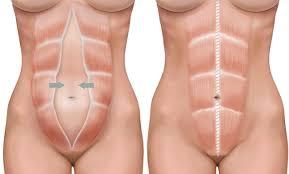 Definitie laparoscopie - ce inseamna laparoscopie - dex Online