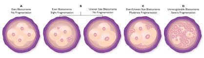 Embryo Grading Chart Embryo Grading Blastocyst Implantation Blastocyst Grading