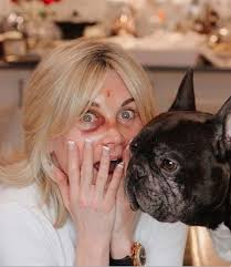Latest stories, photos and videos about anthea turner. Anthea Turner Shows Off Battered Eye After Back Flip Goes Horribly Wrong Irish Mirror Online