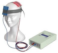 transcranial direct current stimulation over hyped or under transcranial direct current stimulation over hyped or under studied by peter moseley hearing the voice