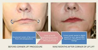 you are here home face lip injections fillers and or lip cosmetic surgery corner of lip lift anguloplasty