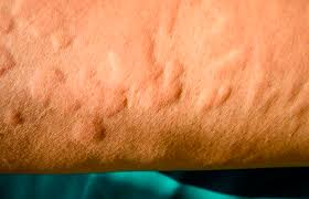 Different skin allergies – causes and treatments | Health24