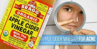 acne treatment acne treatment