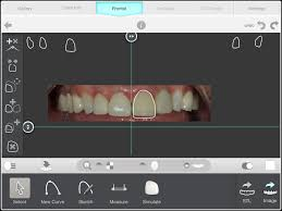 Digital Smile Design App May 2014 Smiles By Jiveh Dental Blogs More