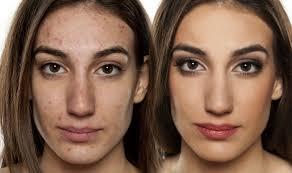 top 6 makeup tips for acne e skin