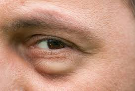 How to get rid of puffy bags under eyes instantly?