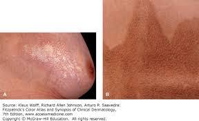 The Skin in Immune, Autoimmune, and Rheumatic Disorders ...