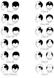 Hair Restoration Surgery Hair Loss Specialist Toronto