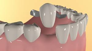 Dental Bridges Dubai : Dental Bridges Clinics in Dubai with Reviews