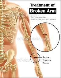 broken arm pain relief