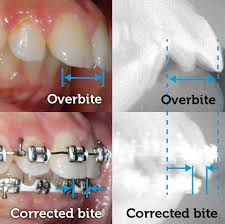 Overbite Corrected With Braces Smile Logic Orthodontics