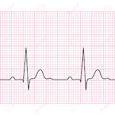 Sinus Rhythm Chart Illustration Of Medical Electrocardiogram Ecg On Chart Paper