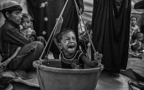 Frayer Boy A Young Refugee Boy Suffering From Malnutrition Is Weighed