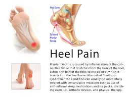 natural foot pain relief