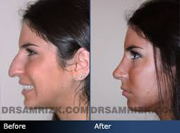 jen selter people magazine. jen selter, the instagram star was once a rhinoplasty patient of nyc nose surgeon dr. sam rizk. she has been featured in magazines and news articles like selter people magazine h