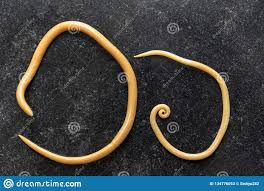 Ascariasis Roundworms Ascariasis Is A Disease Caused By The Parasitic Roundworm