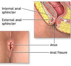 Are anal fissures dangerous
