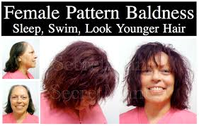 Male Pattern Baldness In Women Mesmerizing Hair Loss Men And Women Before And After