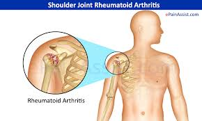 can arthritis in shoulder cause arm pain