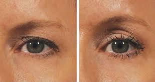 Hangende oogleden voorkomen
