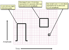 Ecg Chart Examples Measuring Time And Voltage With Ecg Graph Paper Medicine