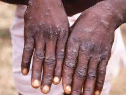 Monkeypox Case Confirmed In Singapore ...