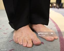 July 30, 2009 Doctor Jeffery Robbins shows the Star his feet as 1,000...  News Photo - Getty Images